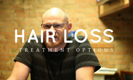 Hair Loss Treatment Options Available To Men